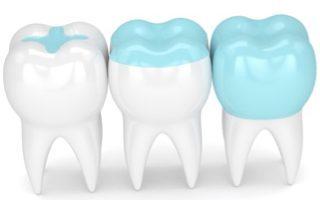 dental-Inlays-Onlays-320x200