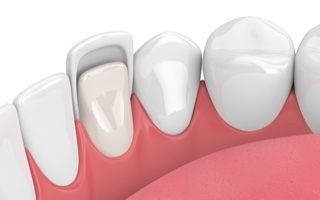 dental-bonding-1-320x200