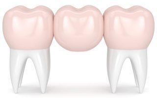 dental-bridge-copy-320x200