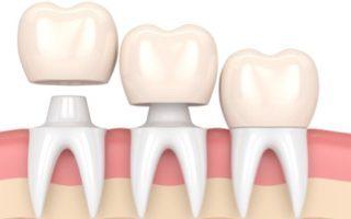 dental-crowns-320x200