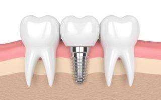 dental-implant-320x200 Nazareth PA