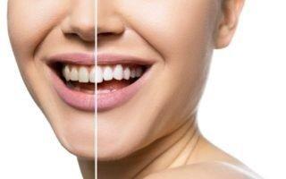 teeth-whitening-320x200